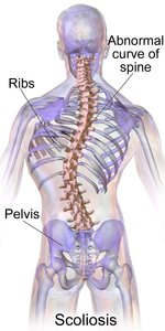 Nutrition and Diet for Scoliosis